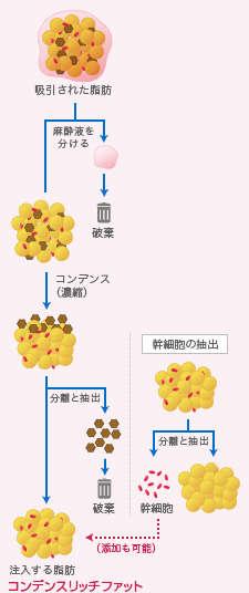 コンデンスリッチ豊胸・コンデンスリッチファット抽出