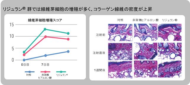 線維芽細胞スコア1